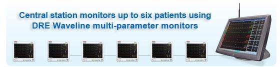 DRE Envoy PDM integrates with patient monitors