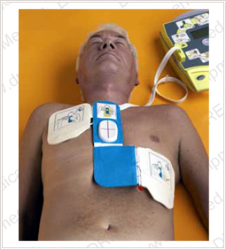 Zoll AED Plus Defibrillator - In Use on Patient